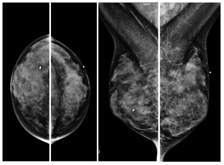Tejido mamario denso en mamografía