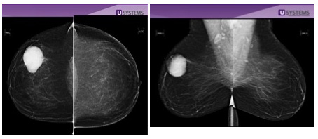 Breast Density And Breast Cancer Gw Hospital
