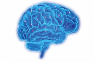 Factores de riesgo de accidente cerebrovascular - GW Hospital